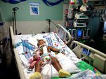 Photo for Dominican Conjoined Twins
